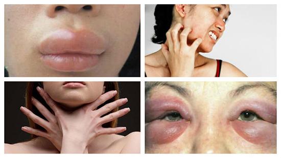 Аллергия на курение сигарет Iqos
